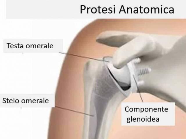 Artroprotesi anatomica della spalla